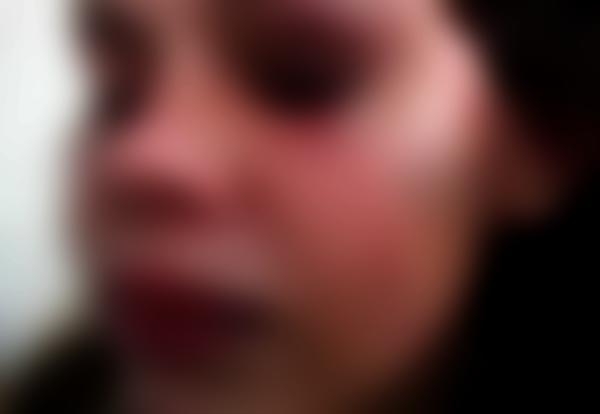 Garota de 15 anos estuprada na Zona Rural de Poções